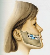 Come si comportano le arcate dentarie nei diversi tipi di sviluppo scheletrico giovanna perrotti - Diversi tipi di permanente riccia ...